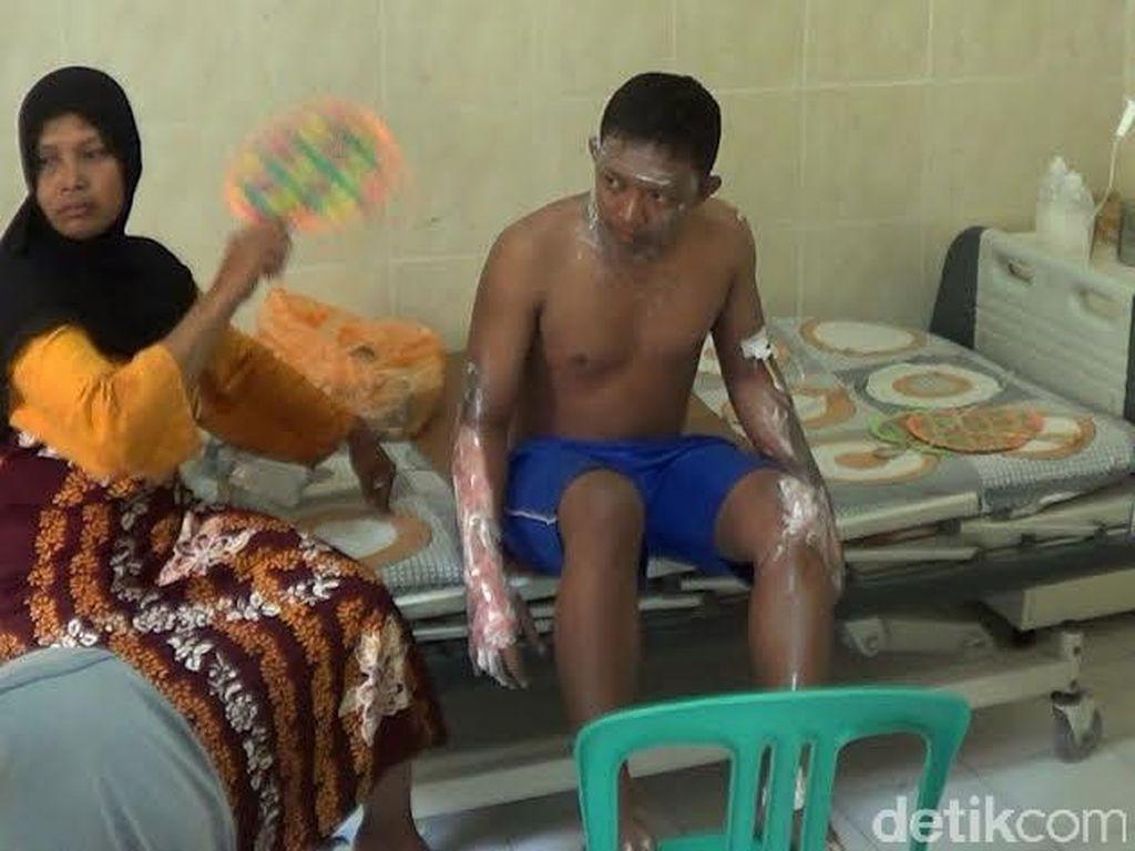Depo Perbaikan Elpiji Meledak, 8 Pekerja Terluka Bakar