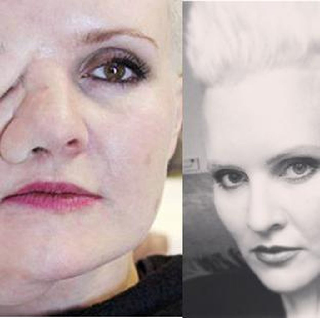 Idap Body Dysmorphic Disorder, Leigh Coba Tumbuhkan Tumor di Wajah