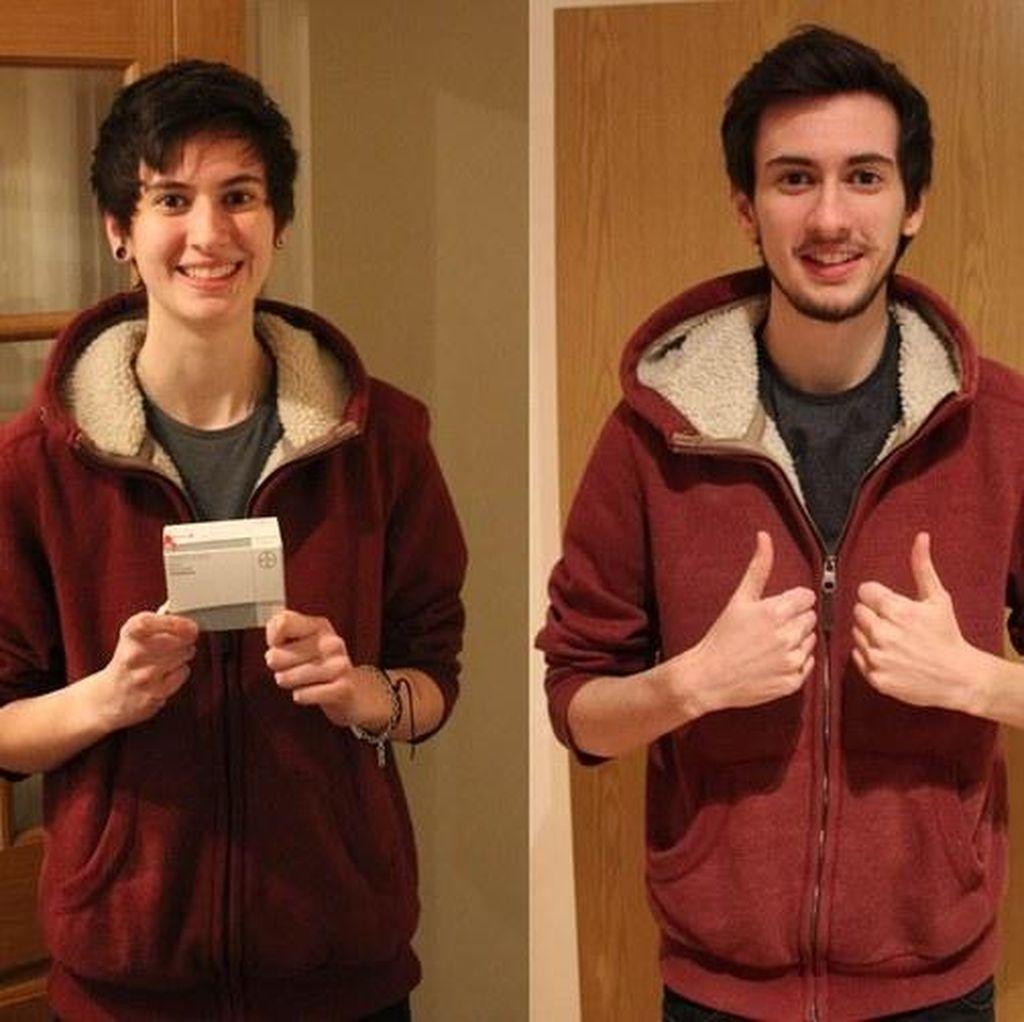 Lewat Selfie, Pria Transgender Ini Tunjukkan Perubahan Dirinya