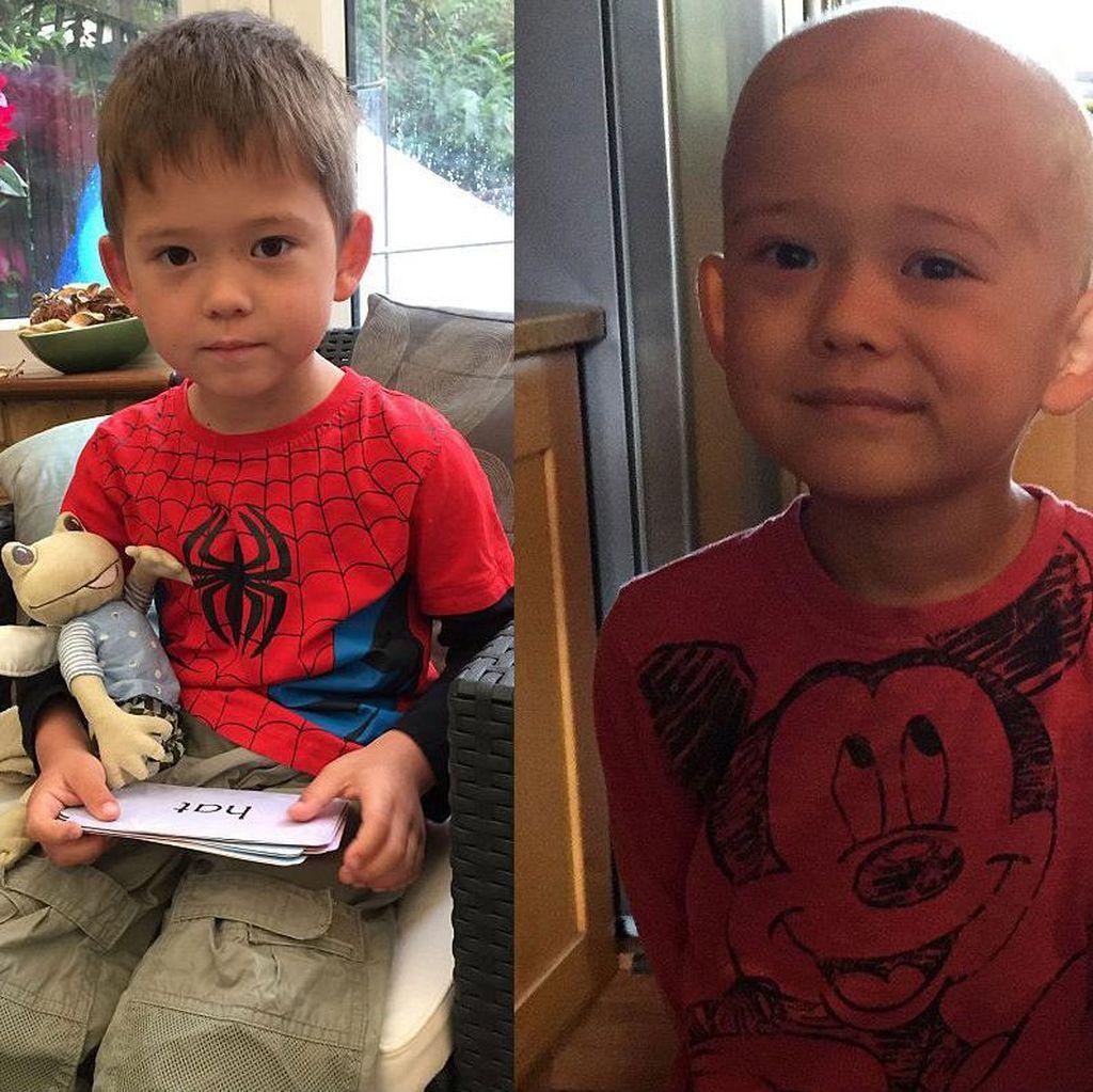 Pipi Nyeri Dikira Sariawan, Joshua Ternyata Kena Kanker