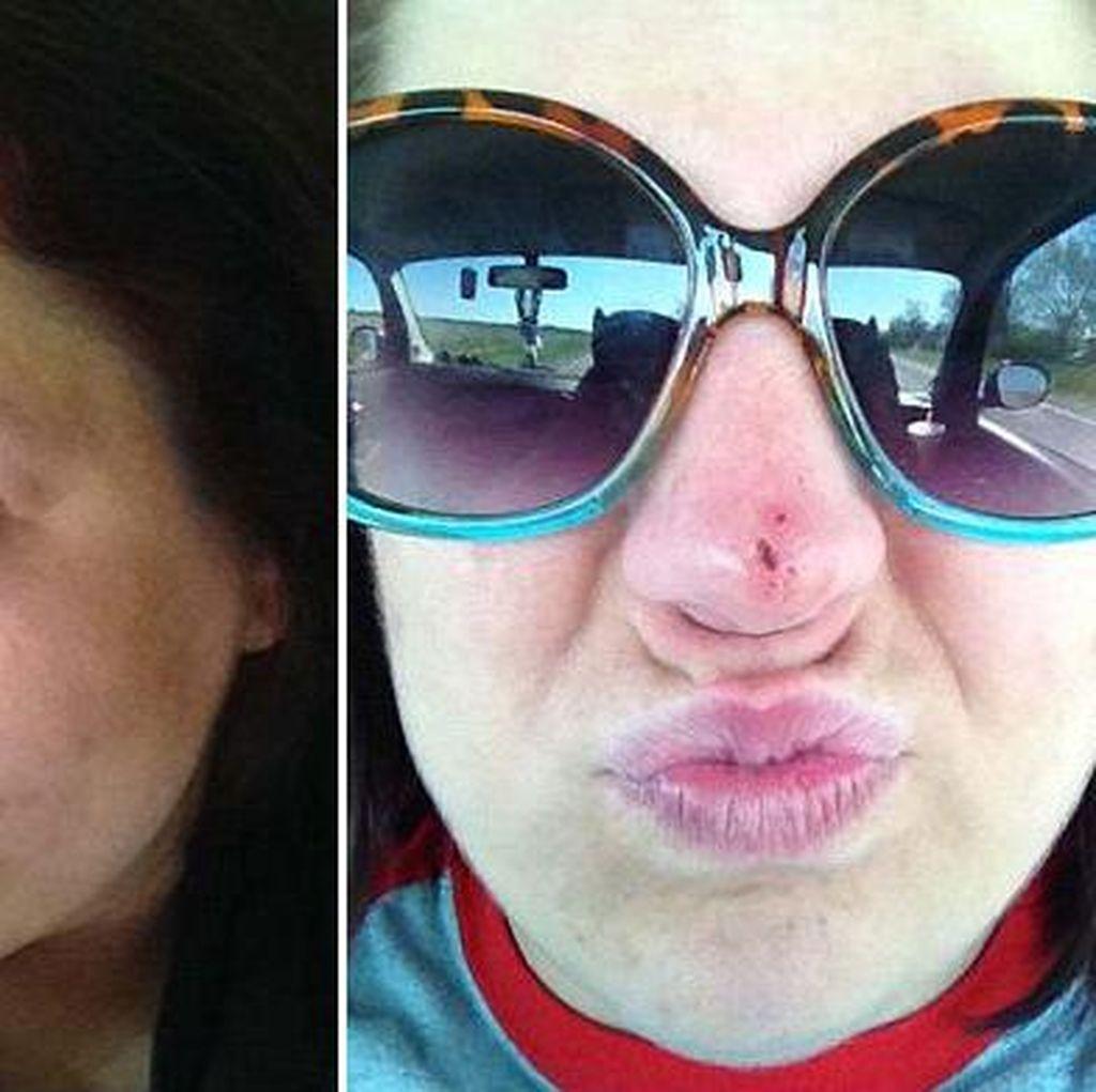 Kanker Kulit, Bree Dibuatkan Belalai sebagai Cikal-bakal Hidung Barunya