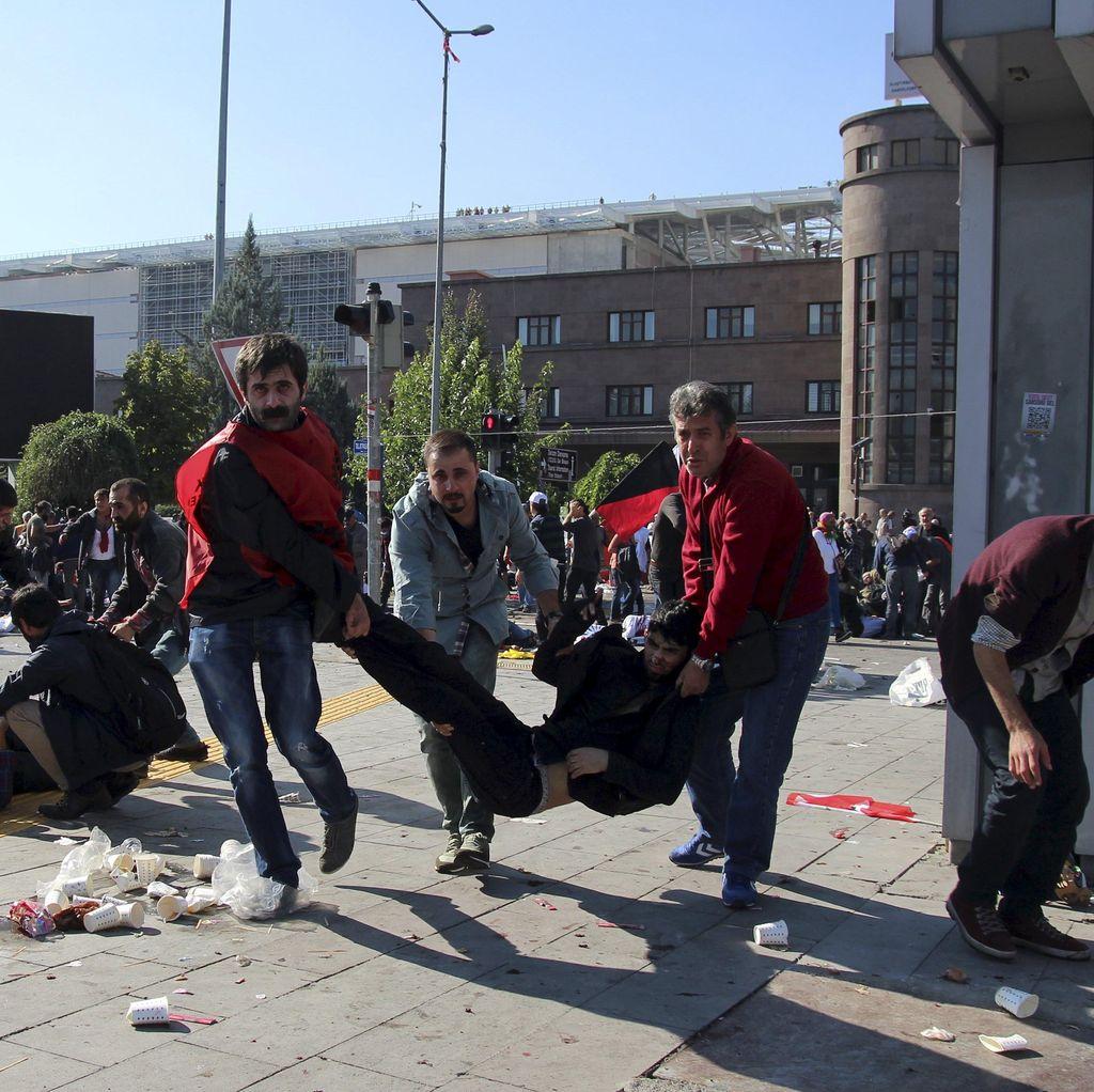 Korban Ledakan Bom Kembar di Turki Jadi 86 Orang, 186 Lainnya Luka