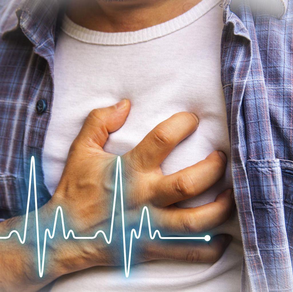 Meski Hanya Selintas, Degup Jantung Tak Berirama Berisiko Stroke