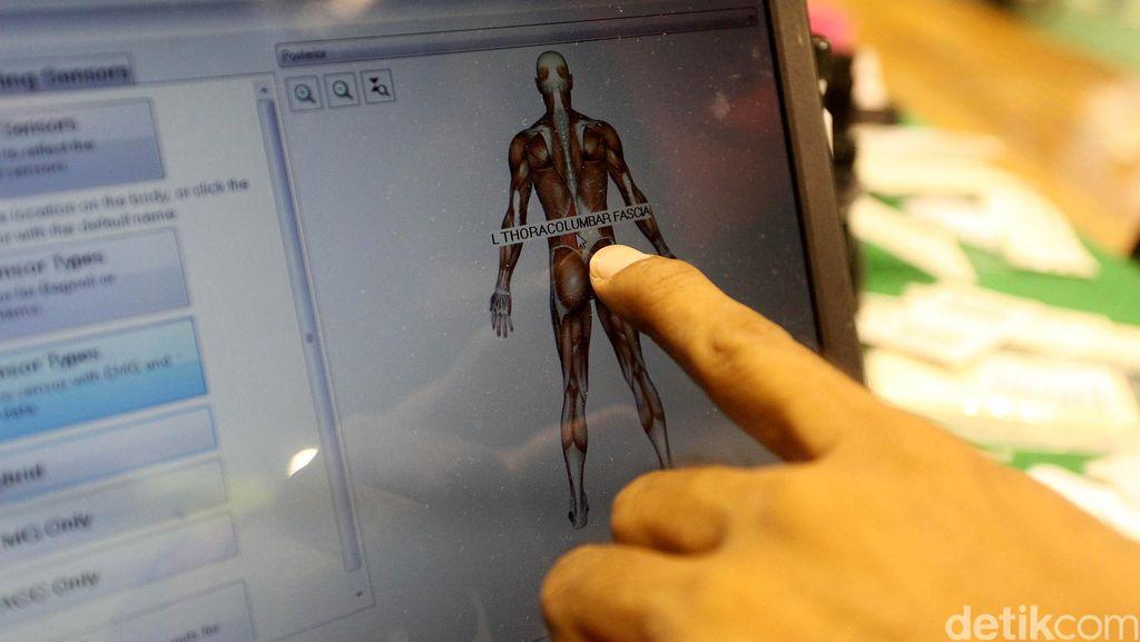 Pasien Alami Patah Tulang saat Ditangani Koas, RSU Zainal Abidin Menjawab