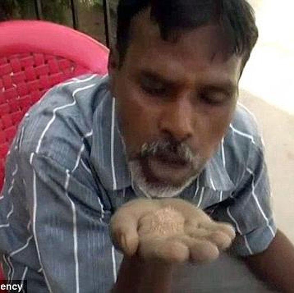 Idap Pica, Pria 45 Tahun Ini Hobi Makan Pasir, Batu Bata dan Kerikil