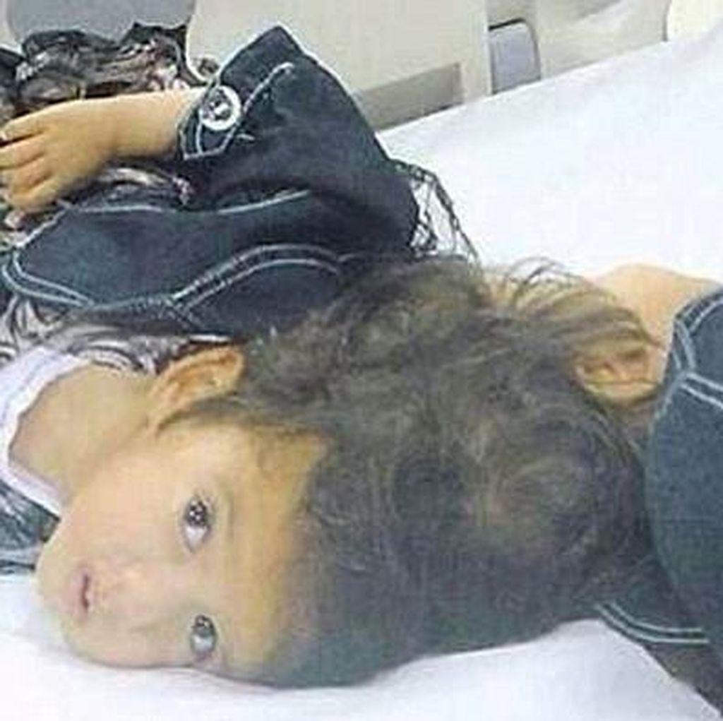 Anak Kembar Dempet Tengkorak Asal Suriah Ini Siap Dipisahkan