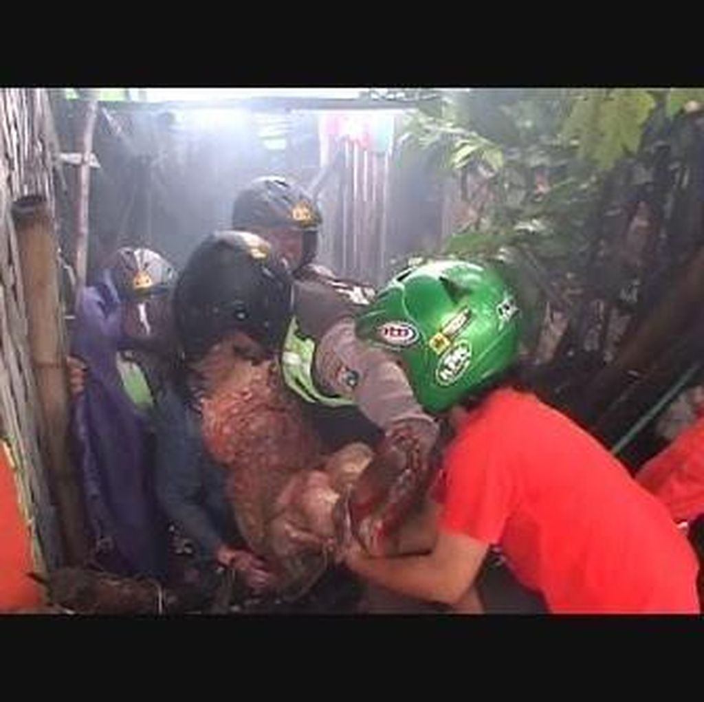 Warkop Terbakar, Wanita Usia 60 Tahun Terluka Bakar Sekujur Tubuh