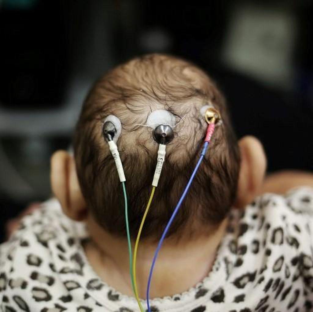 Bayi Asal Spanyol Jadi Bayi dengan Mikrosefali Pertama di Eropa