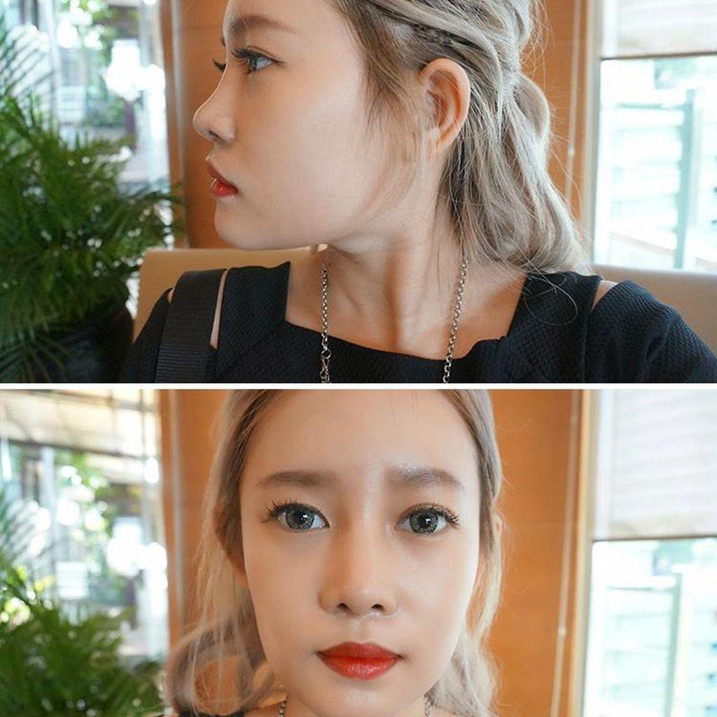 Foto: Mengintip Prosedur Operasi Plastik Blogger Kecantikan Stella Lee