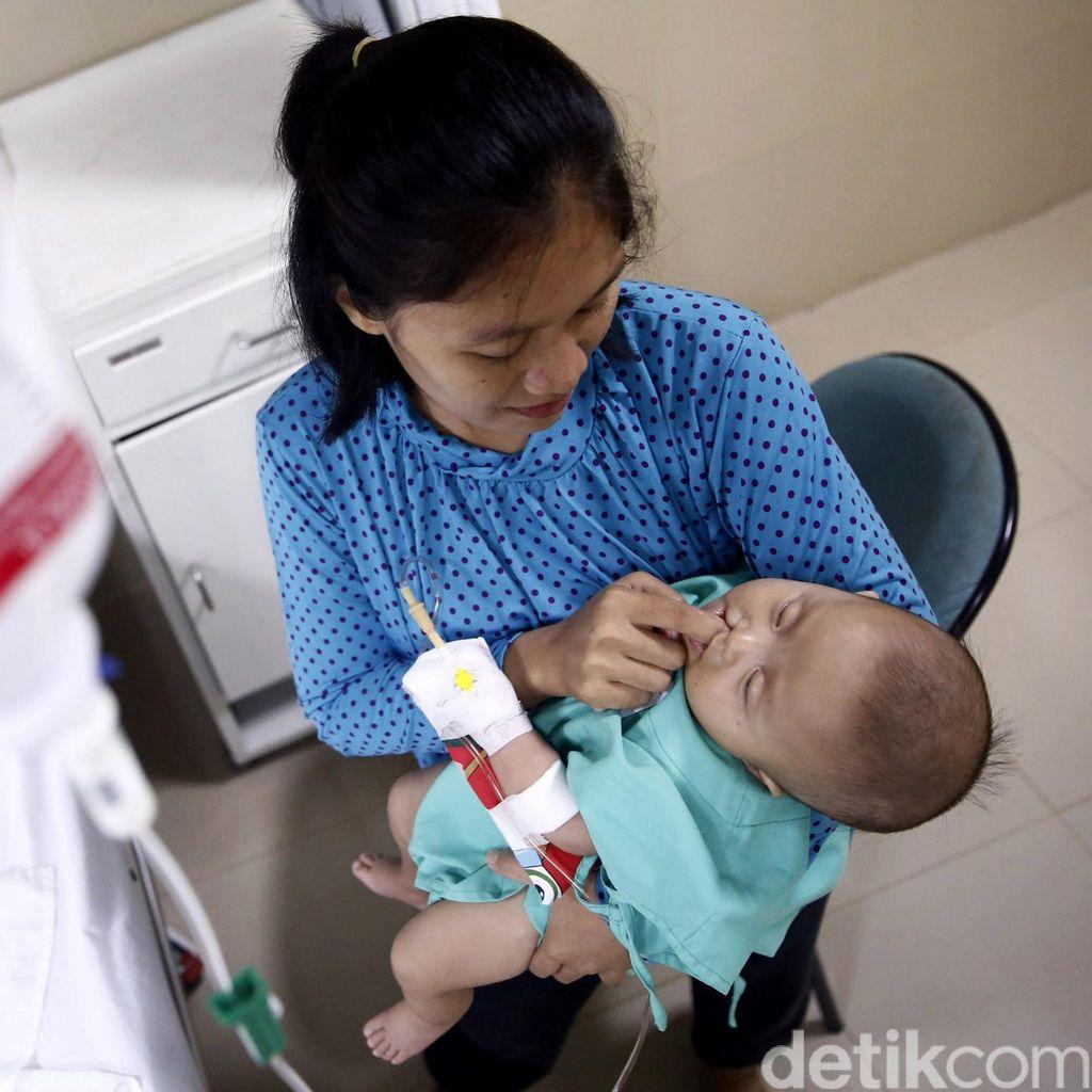 Adakah Cara Mencegah Bibir Sumbing pada Anak Sejak Masa Kehamilan?