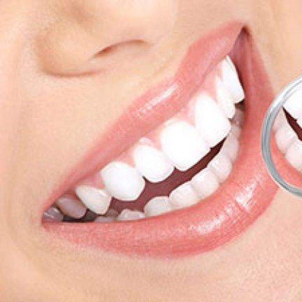 Ingin Memutihkan Gigi? Ketahui Dulu Efek Sampingnya