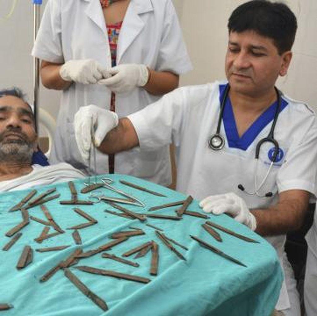 Pria India ini Telan 40 Pisau Selama 3 Bulan, Dokter Berhasil Mengambilnya