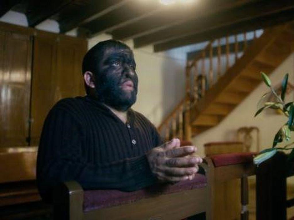 Kisah Aceves, Manusia Berbulu Lebat yang Dipanggil Manusia Serigala