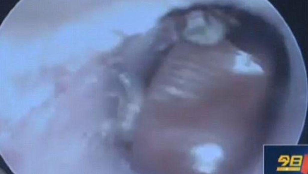 Tak Hanya Seekor, Satu Keluarga Besar Kecoa Tinggal dalam Kuping Pria ini