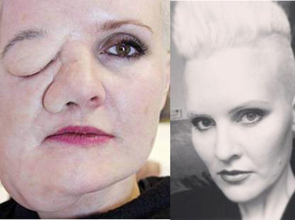 Idap Body Dysmorphic Disorder, Leigh Coba 'Tumbuhkan' Tumor di Wajah