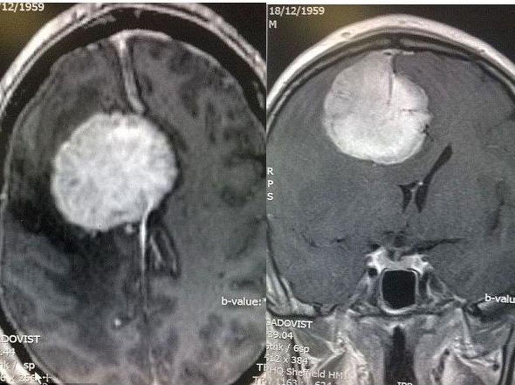 Sering Depresi, Wasit Ini Ternyata Punya Tumor di Otaknya
