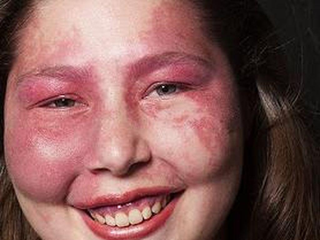 Ungkap Arti Cantik Sejati dari Wanita Albino & Penderita Sindrom Kulit Merah
