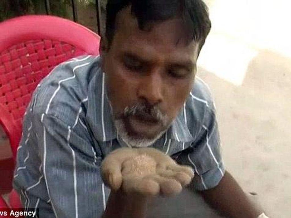 Idap Pica, Pria 45 Tahun Ini 'Hobi' Makan Pasir, Batu Bata dan Kerikil