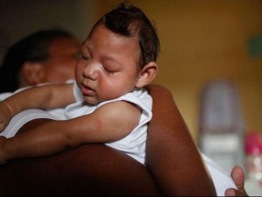 Dugaan Kerusakan Mata Pada Bayi Terkait Zika Makin Menguat