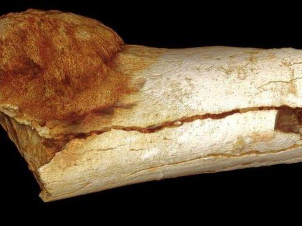 Jejak Kanker Prasejarah Ditemukan pada Fosil Kaki Manusia Purba