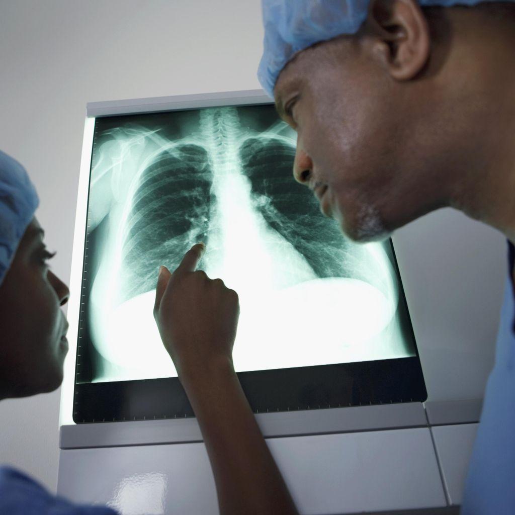 Polusi Udara Picu Mutasi Genetik di Balik Kanker Paru