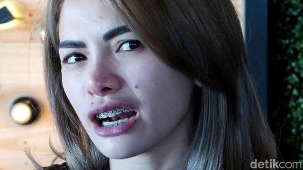 Nikita Mirzani Lagi-lagi Bantah Terlibat Prostitusi