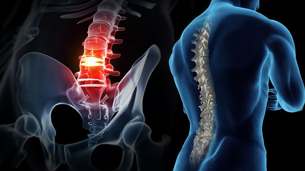 Chiropractic Masuk ke Indonesia 15 Tahun Lalu
