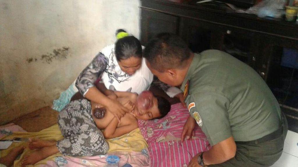 Idap Tumor Aneh, Bocah Perempuan di Depok ini Butuh Bantuan