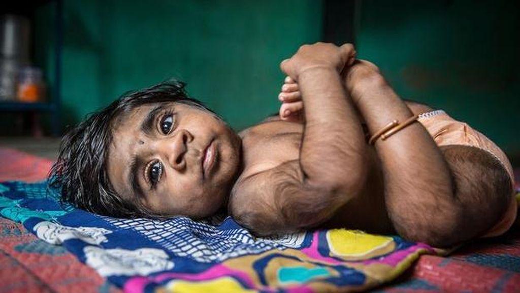 Duh! Bayi di India Ini Berbulu Lebat Mirip Serigala