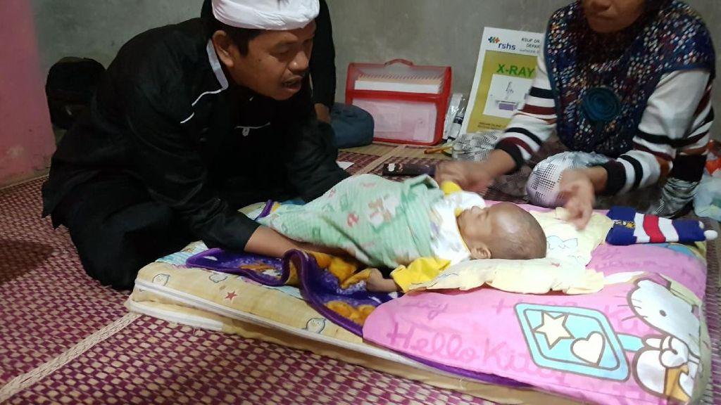 Bayi Rizki di Cianjur Menderita Penyakit Langka