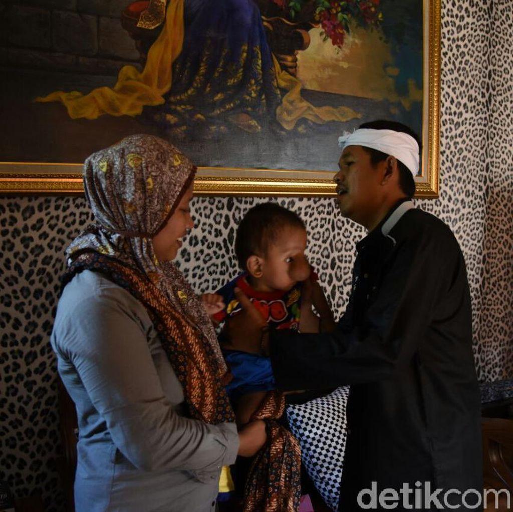 Anak Derita Penyakit Kelainan, Ibu ini Sambangi Rumah Bupati Dedi