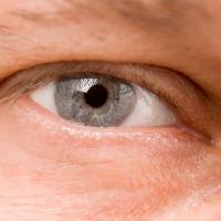 Kenapa Mata Selalu Berair?