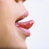 Tali Lidah Putus Akibat Ciuman