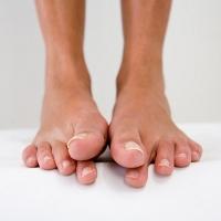 Kenapa Tangan dan Kaki Sering Kesemutan?