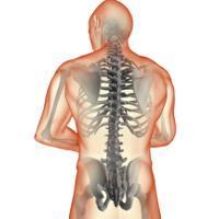Nutrisi Apa yang Bagus untuk Penyembuhan Patah Tulang?
