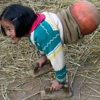 Gadis Bola Basket, Jalan Pakai Bola Basket Karena Tak Punya Kaki