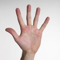 Telapak Tangan Sering Berkeringat Tanda Jantungan?