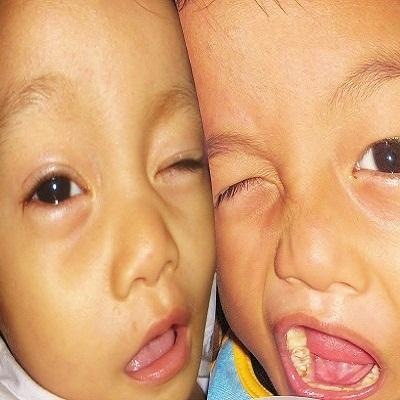 Dewi Maria Christie Nanga, 1,1 Tahun; Perempuan; f