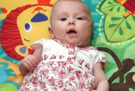 Bayi Hebat, Kalahkan Kista yang Besarnya Seukuran Melon