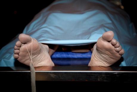 Bagaimana Pembuluh Darah Pecah Bisa Mengakibatkan Kematian?