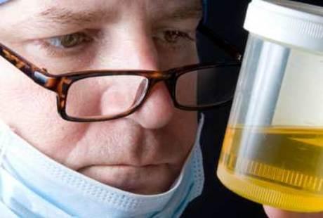 Ini Ciri Urine Orang yang Ginjalnya Bermasalah