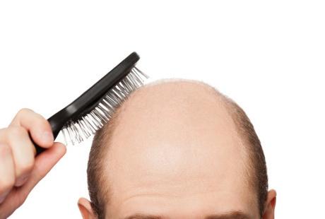 Rambut Rontok Sampai ke Akar, Bisakah Tumbuh Lagi?