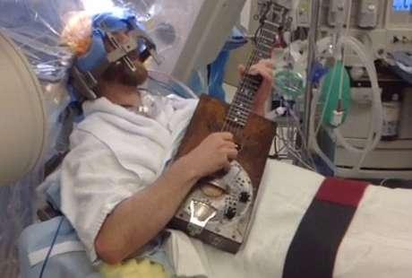 Keren, Pria Ini Jalani Operasi Otak Sambil Menggenjreng Gitar