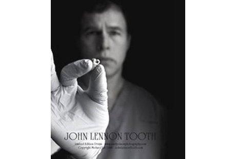 Dokter Gigi Asal Kanada Ingin Hidupkan John Lennon Lewat Kloning