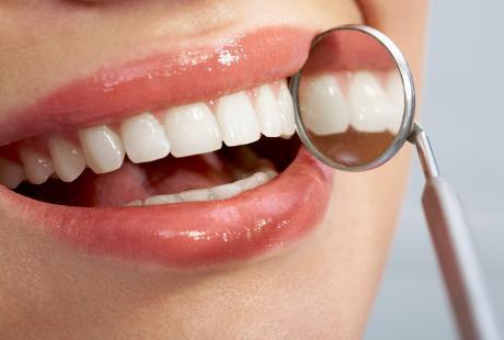 Ingin Periksa Gigi Gratis? Bulan Kesehatan Gigi Nasional Siap Dimulai