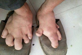 Ketika Pria Berkaki Raksasa Mendapat Sepatu yang Pas