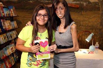 Lizzie Velasquez, Wanita Terkurus Sejagat yang Tubuhnya Tinggal Tulang