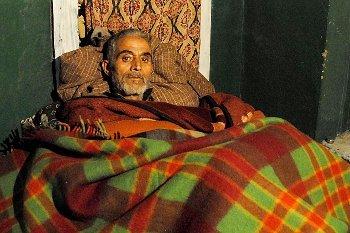 Mohammad Yousuf Khan, Kakek dengan Batu Kandung Kemih Raksasa