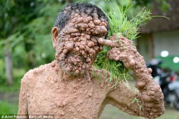 Slamet, Pria Asal Magetan yang Tubuhnya Dipenuhi Ratusan Tumor