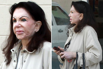 Gara-gara Operasi Plastik, Wanita Ini Merasa Wajahnya Seperti Tupai